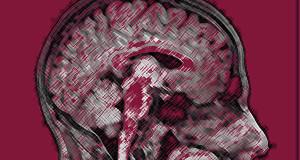 brain_scan600